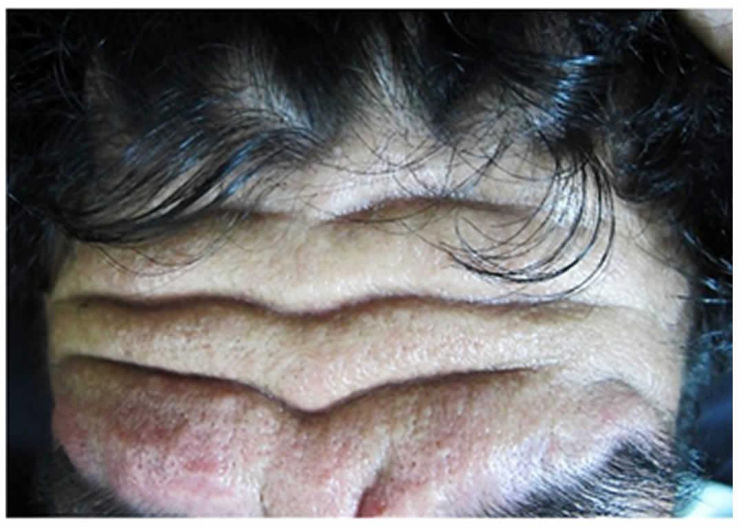 100N2 Figura 1 - Síndrome de touraine-soulente-golé - Revista Argentina de Dermatología