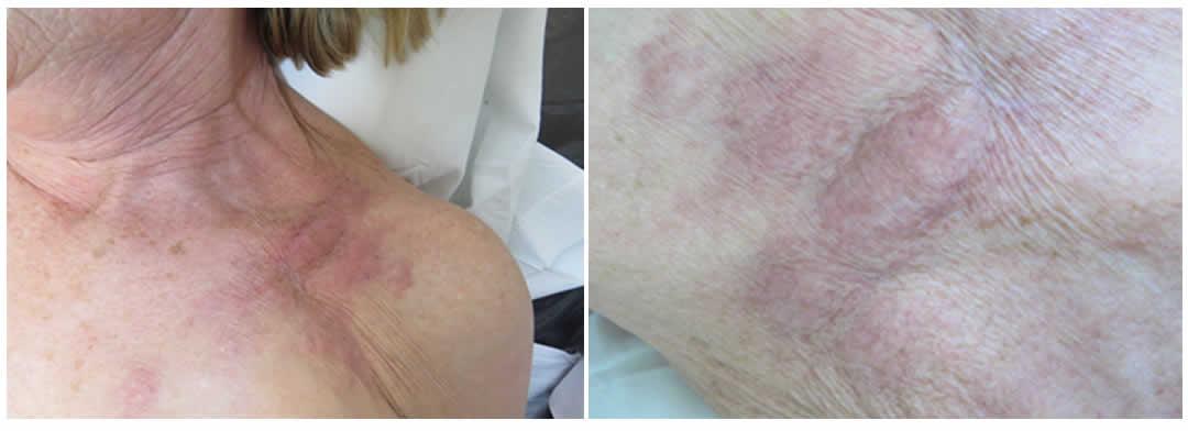100N2 Figura 1 y 2 - Metástasis cutánea de carcinoma de mama primario - Revista Argentina de Dermatología
