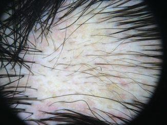 100N2 Figura 2 - Dermatoscopia de la alopecia areata - Revista Argentina de Dermatología