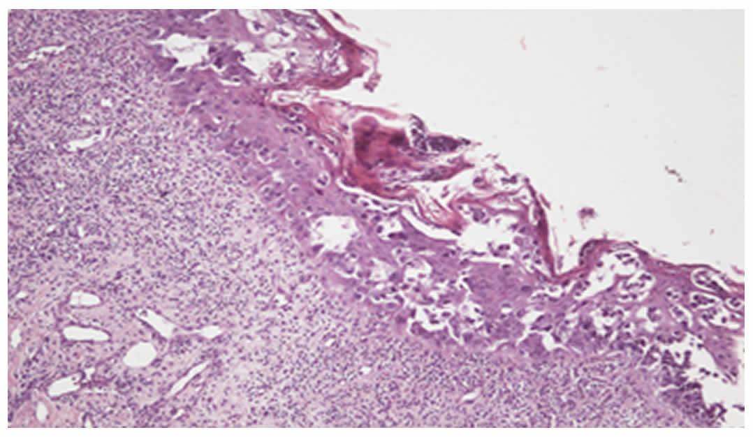 100N2 Figura 2 - Enfermedad de Paget mamaria - Revista Argentina de Dermatología