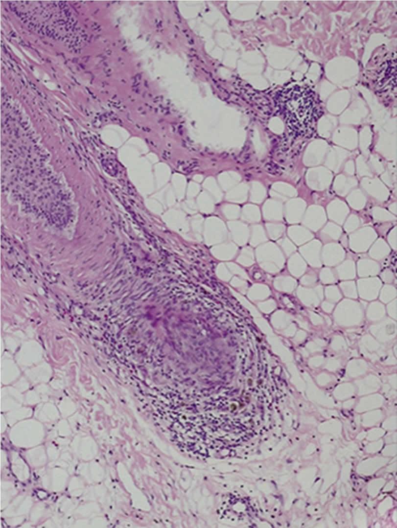 100N2 Figura 3 - Histopatología de la alopecia areata - Revista Argentina de Dermatología