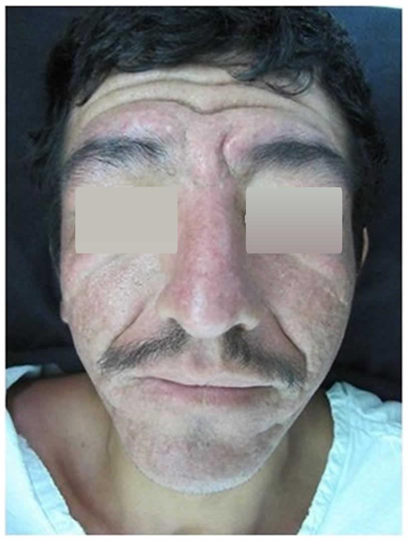 100N2 Figura 3 - Síndrome de touraine-soulente-golé - Revista Argentina de Dermatología