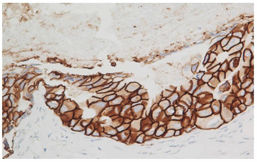 100N2 Figura 6 - Enfermedad de Paget mamaria - Revista Argentina de Dermatología