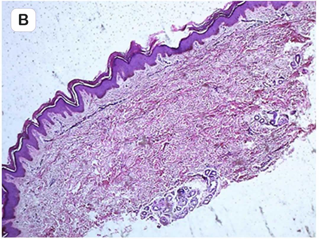 100N2 Figura 7 - Síndrome de touraine-soulente-golé - Revista Argentina de Dermatología