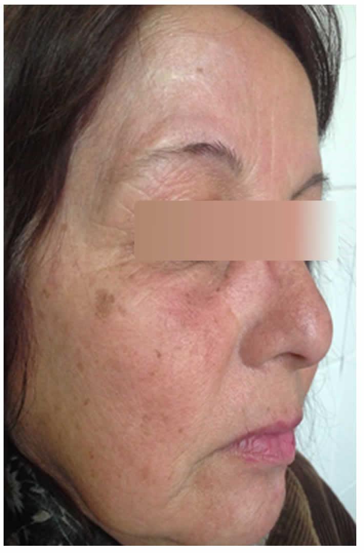 100N2 Figura 8 - Leishmaniasis cutánea primaria - Revista Argentina de Dermatología