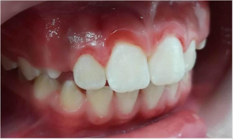 RAD 100-3 -13b - Liquen Plano Oral en niños