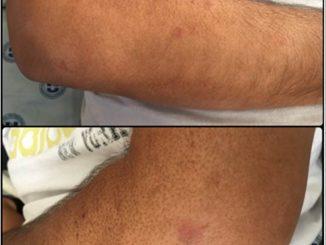 RAD 100-3 -4a Síndrome de Löfgren en Neiva - Colombia: reporte de un caso
