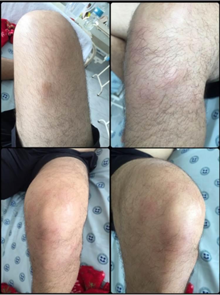 RAD 100-3 -4b Síndrome de Löfgren en Neiva - Colombia: reporte de un caso