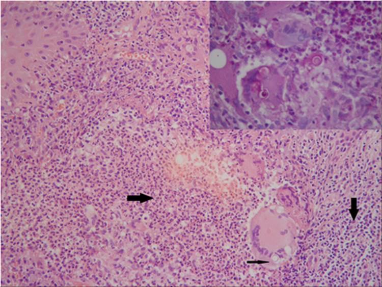 RAD 100-3 -8b - Criptococosis cutanea Primaria
