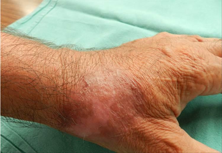 RAD 100-3 -8c - Criptococosis cutanea Primaria