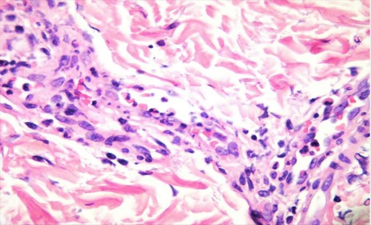 RAD 100-3 -9c - Urticaria vasculitis como manifestación de Lupus Eritematoso Sistémico
