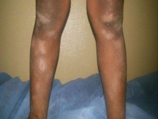 Revista Argentina de Dermatología - 100 - 4 - Dermatitis atópica pitririasis alba 5