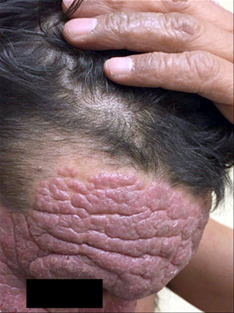 Revista Argentina de Dermatología - 101 - 1 - Dermatitis actínica crónica 2