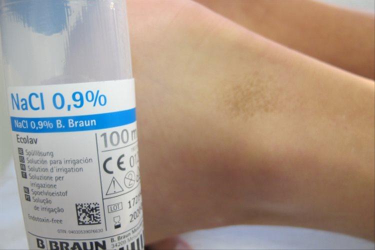 Revista Argentina de Dermatología - 101 - 1 - Dermatosis terra firma 4