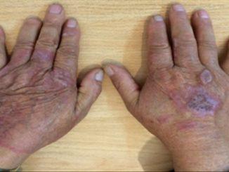 Revista Argentina de Dermatología - 101 - 1 - Granuloma anular perforante 1
