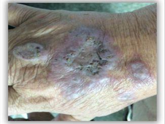 Revista Argentina de Dermatología - 101 - 1 - Granuloma anular perforante 2