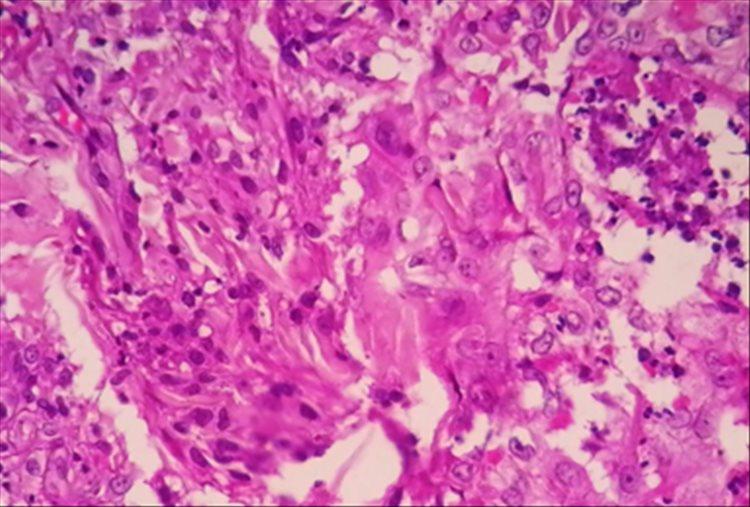 Revista Argentina de Dermatología - 101 - 1 - Granuloma anular perforante 4
