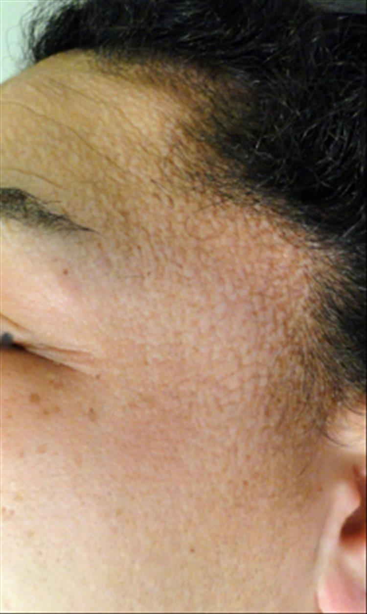 Revista Argentina de Dermatología - 101 - 1 - Escleromixedema. Reporte de un caso 2