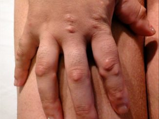 Revista Argentina de Dermatología - 101 - 1 - Escleromixedema. Reporte de un caso 5