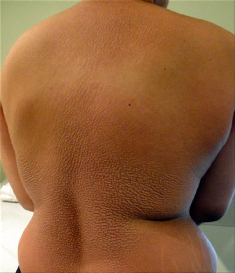 Revista Argentina de Dermatología - 101 - 1 - Escleromixedema. Reporte de un caso 6