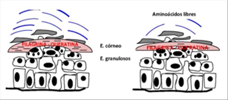 Revista Argentina de Dermatología - 101 - 1 -Ictiosis Lamelar autosómica recesiva 1