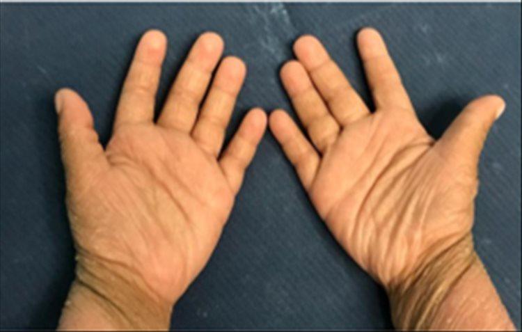 Revista Argentina de Dermatología - 101 - 1 -Ictiosis Lamelar autosómica recesiva 10