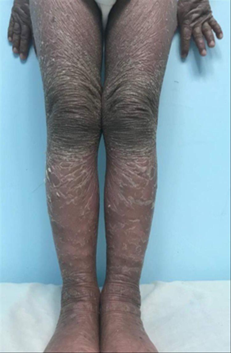 Revista Argentina de Dermatología - 101 - 1 -Ictiosis Lamelar autosómica recesiva 14