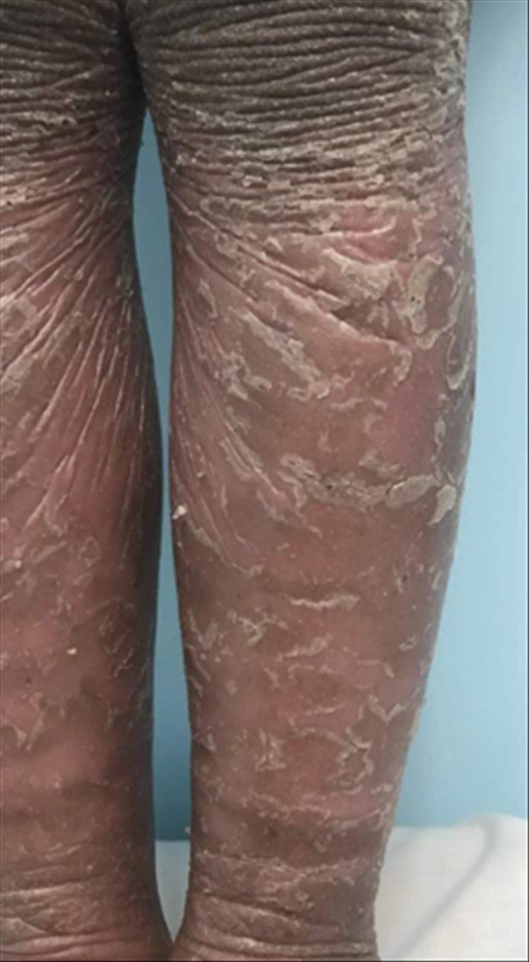 Revista Argentina de Dermatología - 101 - 1 -Ictiosis Lamelar autosómica recesiva 15