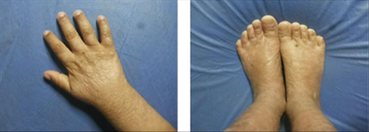 Revista Argentina de Dermatología - 101 - 1 -Ictiosis Lamelar autosómica recesiva 27