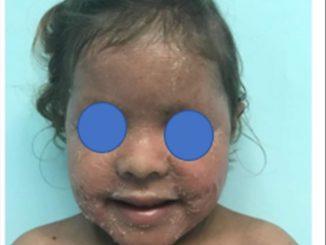 Revista Argentina de Dermatología - 101 - 1 -Ictiosis Lamelar autosómica recesiva 7