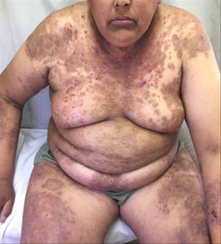 Revista Argentina de Dermatología - 101 - 1 -Pénfigo Foliáceo con desafío terapéutico 1