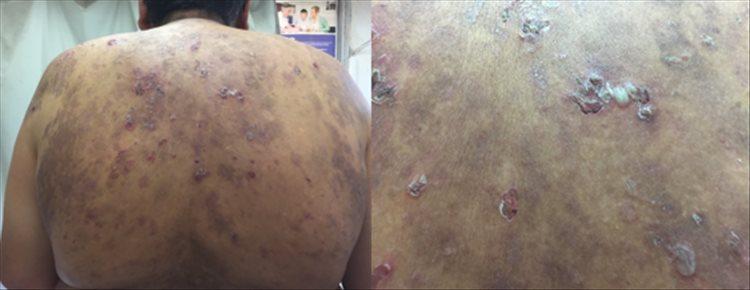 Revista Argentina de Dermatología - 101 - 1 -Pénfigo Foliáceo con desafío terapéutico 2