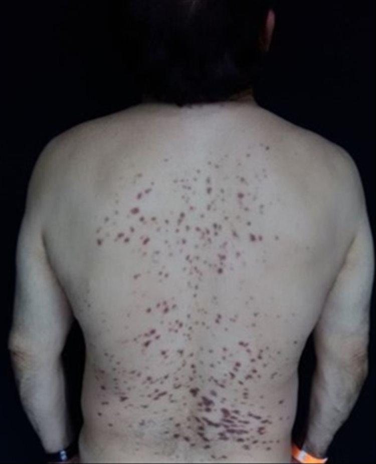 Revista Argentina de Dermatología - 101 - 1 - Plasmocitosis cutánea 1
