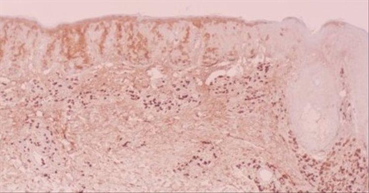 Revista Argentina de Dermatología - 101 - 1 - Plasmocitosis cutánea 6