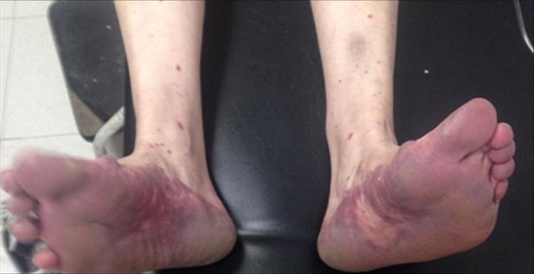 Caso Purpura en Síndrome de Dress 1a - Revista Argentina de Dermatología