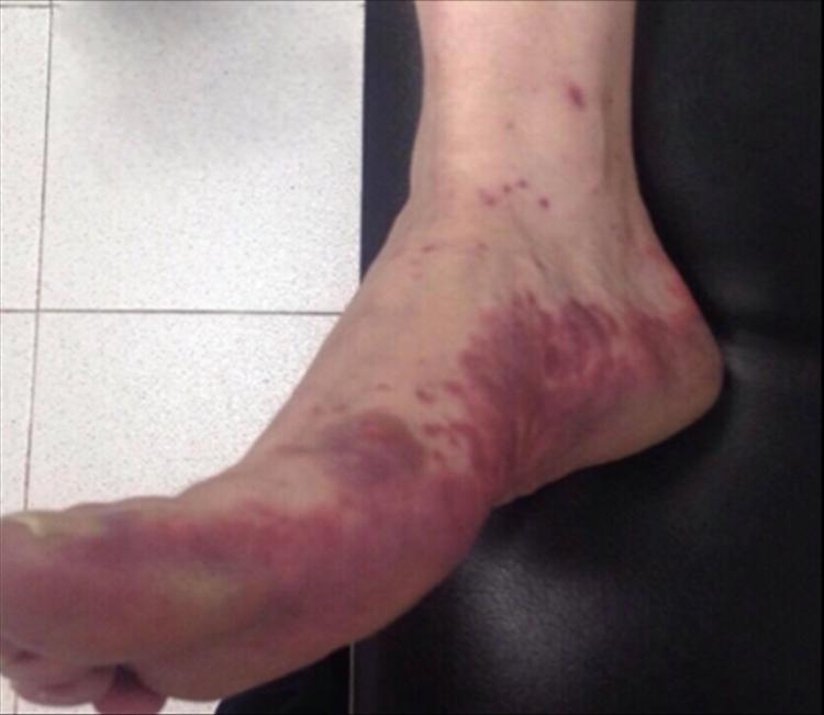 Caso Purpura en Síndrome de Dress 1b - Revista Argentina de Dermatología