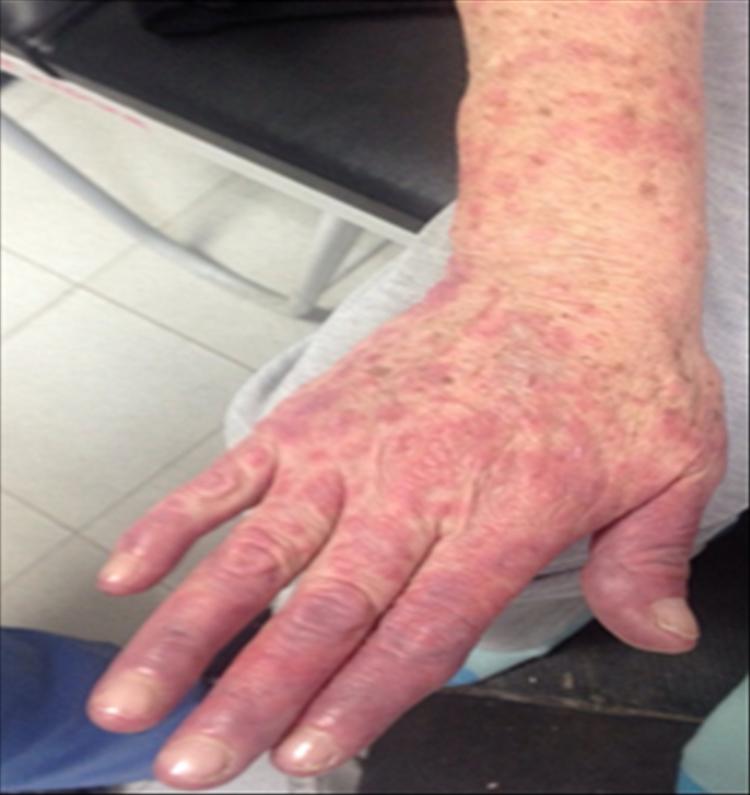 Caso Purpura en Síndrome de Dress 2b - Revista Argentina de Dermatología