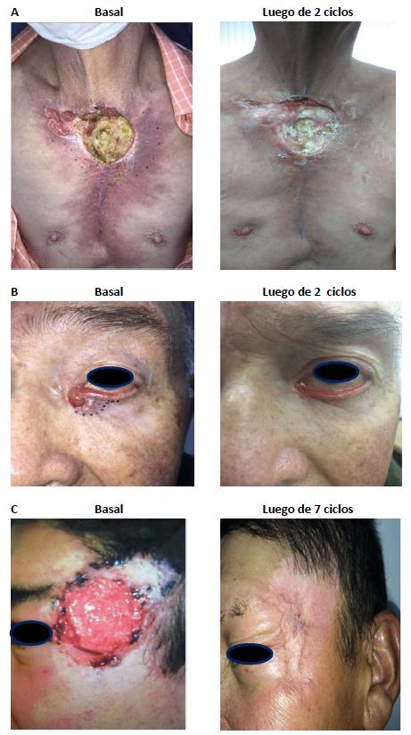 Experiencia en el Tratamiento eel Carcinoma Basocelular Localmente Avanzado o Metastásico con Vismodegib - Revista Argentina de Dermatología