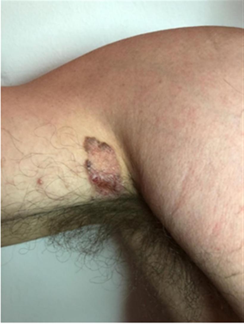 Revista Argentina de Dermatología - 101 - 2 - Carcinomas basocelulares 1