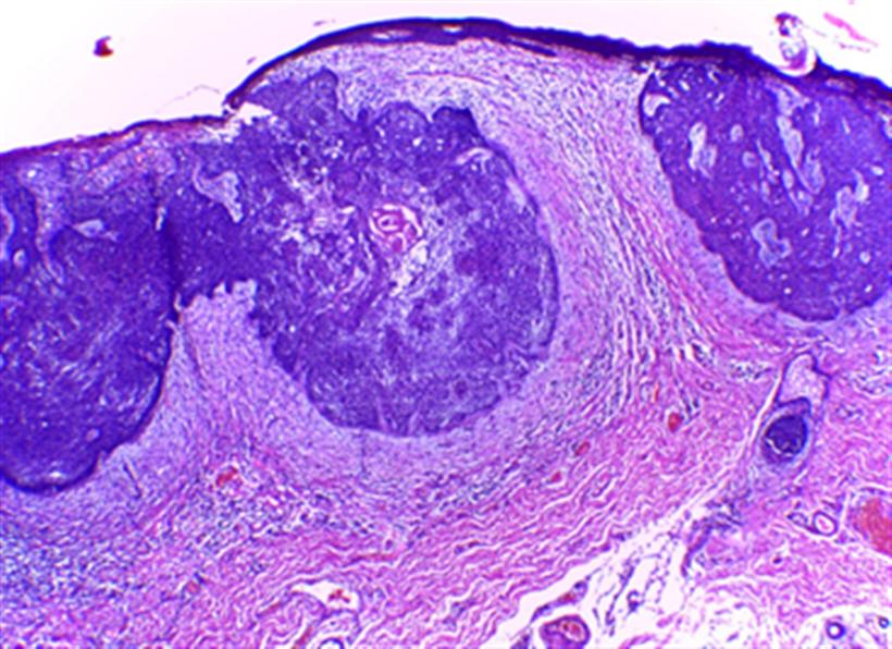 Revista Argentina de Dermatología - 101 - 2 - Carcinomas basocelulares 5