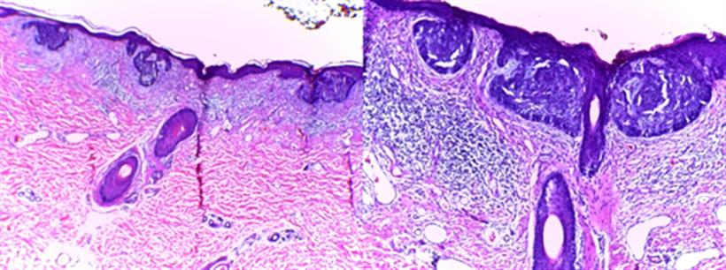 Revista Argentina de Dermatología - 101 - 2 - Carcinomas basocelulares 8