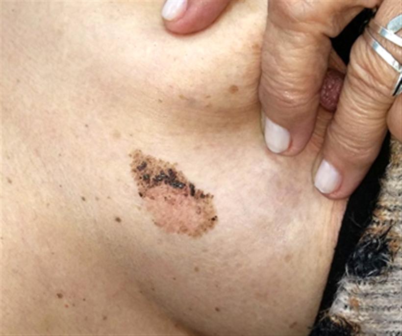 Revista Argentina de Dermatología - 101 - 2 - Queratoris seborreica 1