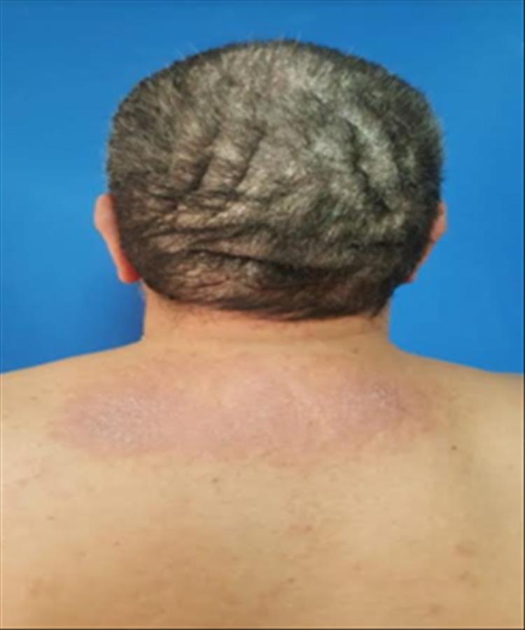 Fig 2: Pliegues gruesos y surcos profundos dispuestos de forma anteroposterior en vértex y transversal en región occipital.