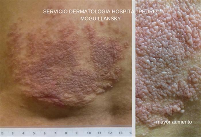 Neurofibromatosis - Imagen 07