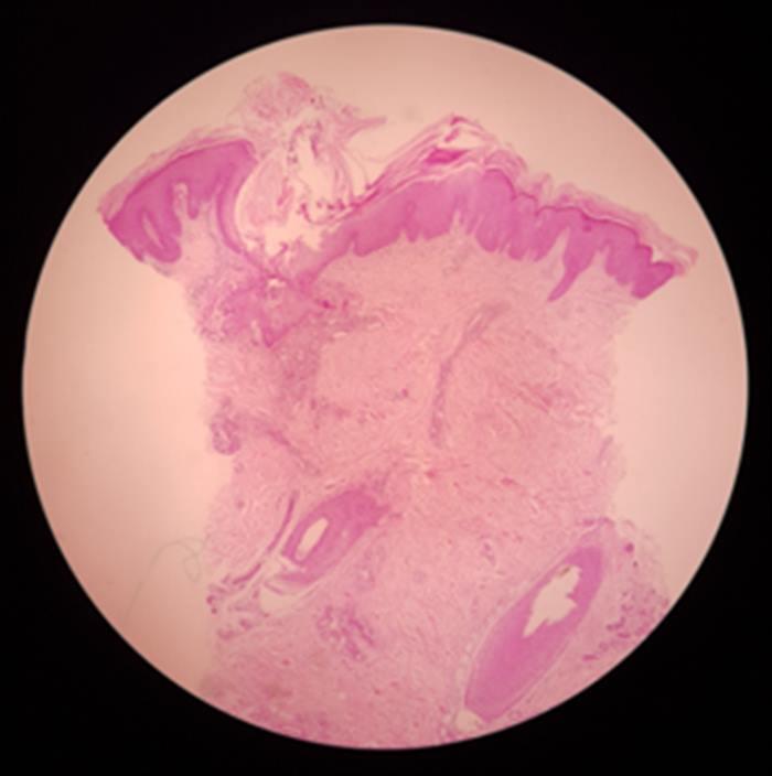Pitiriasis rubra pilaris - Imagen 03
