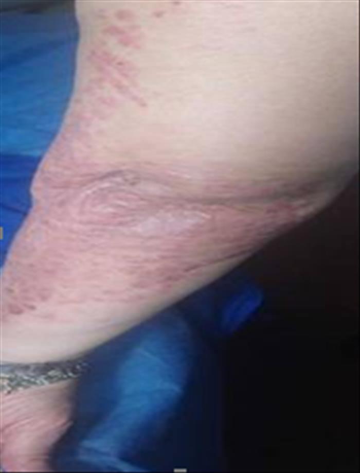 Psoriasis severa en paciente con infección latente por tuberculosis - Imagen 02