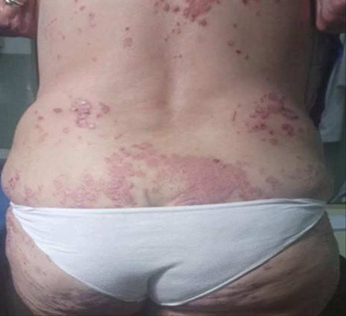 Psoriasis severa en paciente con infección latente por tuberculosis - Imagen 03