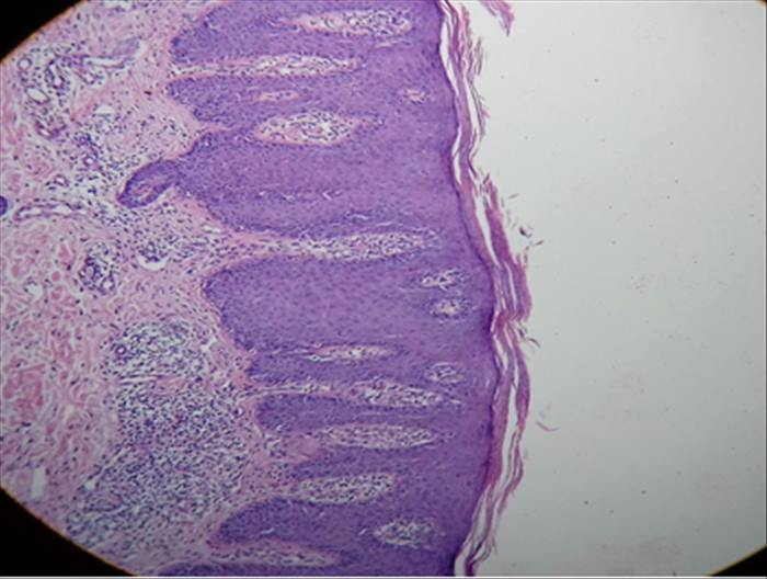 Psoriasis severa en paciente con infección latente por tuberculosis - Imagen 05
