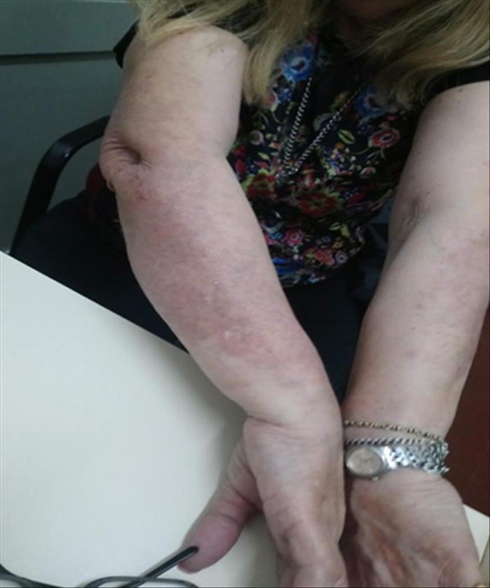 Psoriasis severa en paciente con infección latente por tuberculosis - Imagen 07