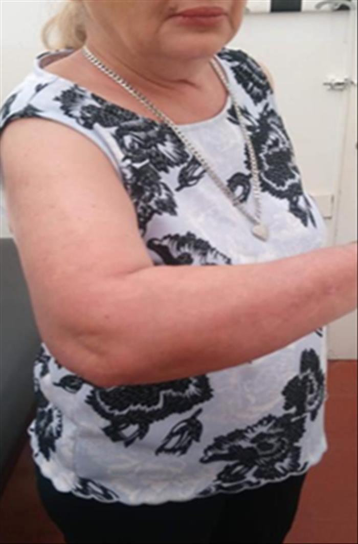 Psoriasis severa en paciente con infección latente por tuberculosis - Imagen 09